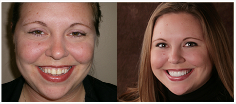 Shelby Township Dentist - Before and Afters